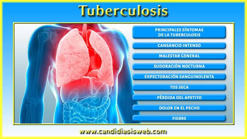 Sintomas tuberculosis